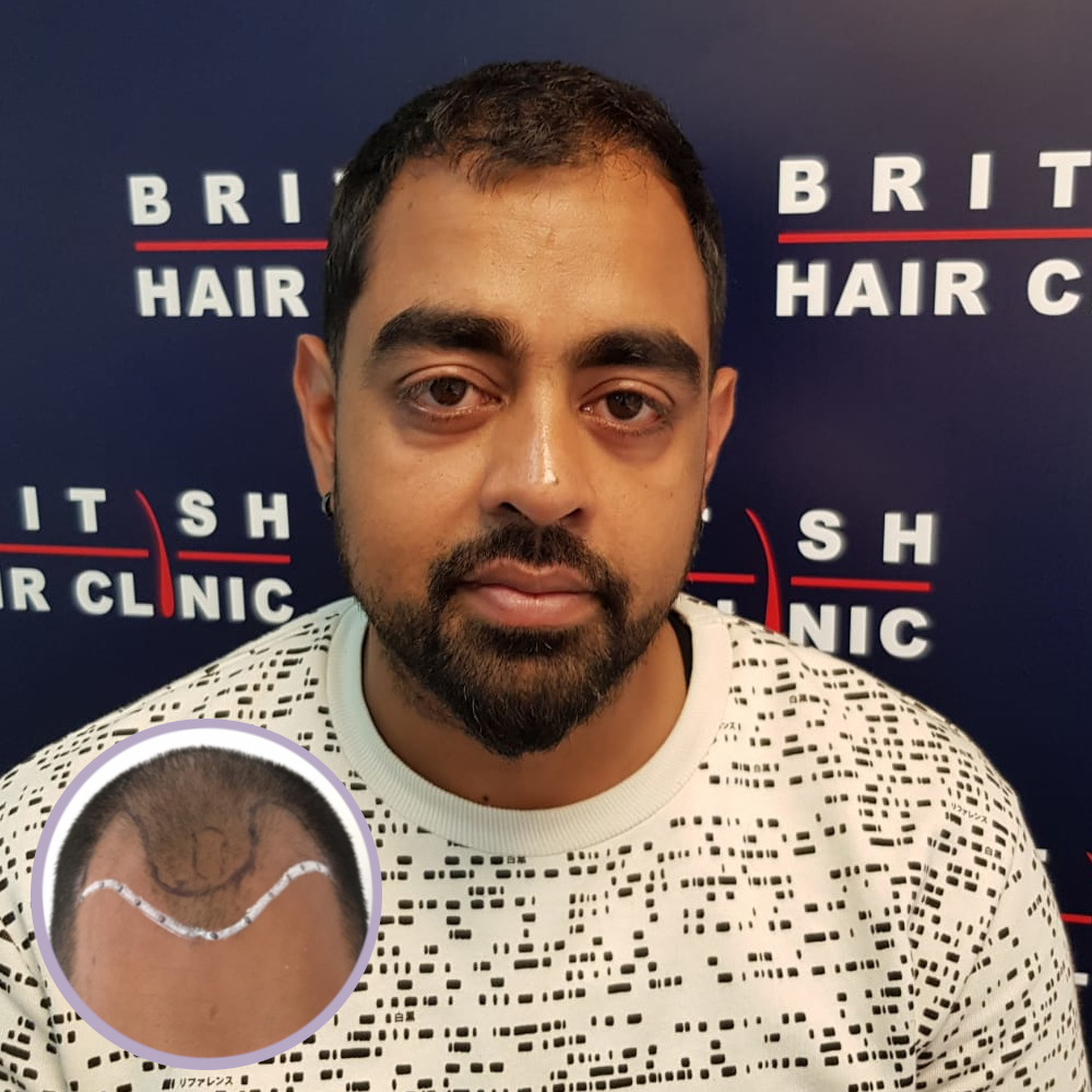 Rakesh's FUE Results