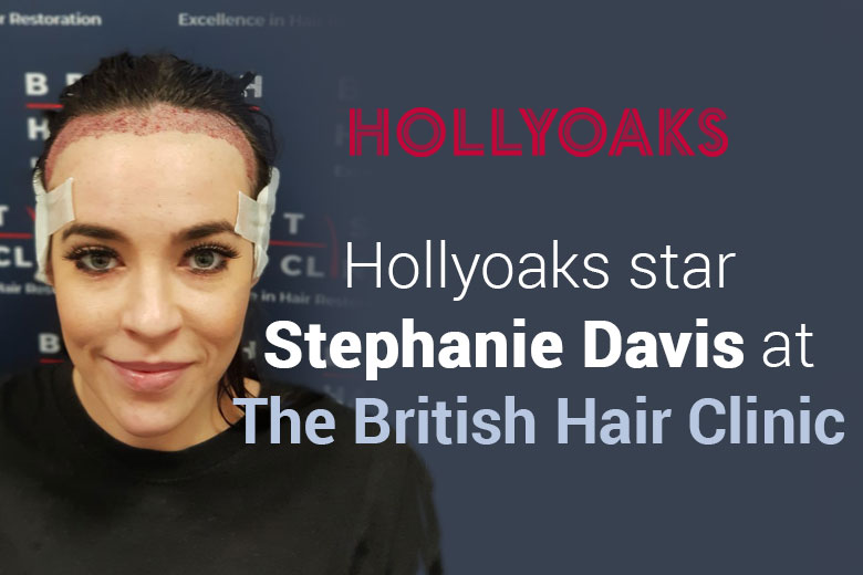 Stephanie Davis Hair Transplant Treatment​