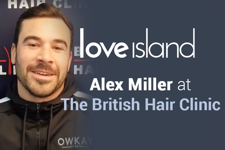 Alex Miller Love Island Hair Transplant Treatment