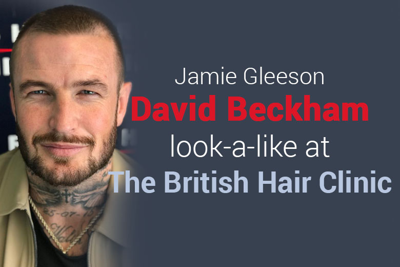 David Beckham Body Double Hair Transplant