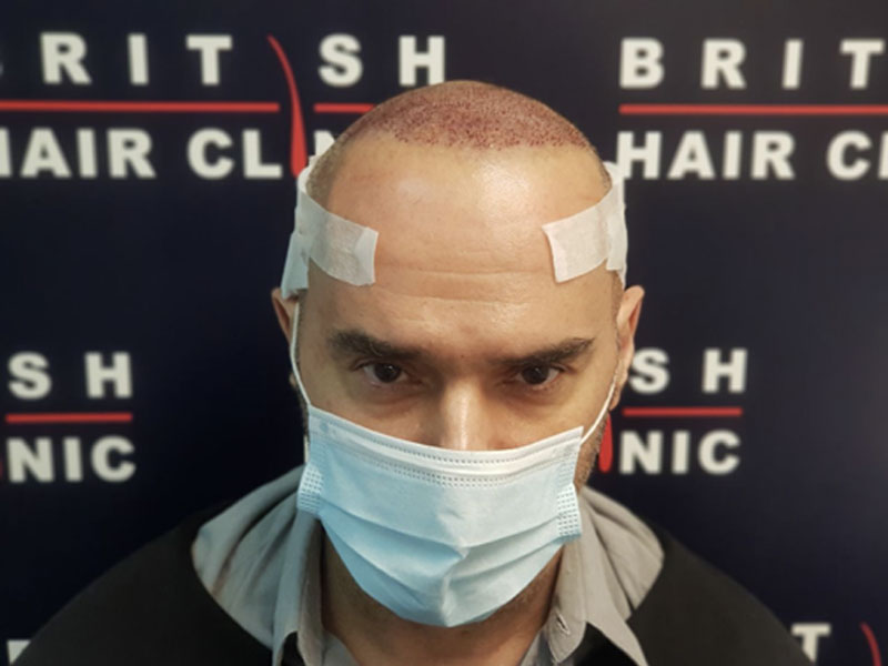Michael Greco - EastEnders Legend 'Beppe' - Hair Transplant Treatment - British Hair Clinic